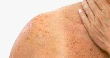 cancer de pele