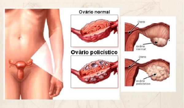 ovariopolicistico
