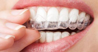 Como clarear os dentes veja nossas dicas! 1