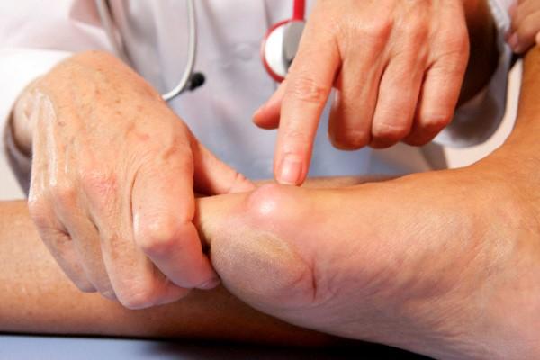 para que sirve el acido urico en el cuerpo humano gota empeine del pie tomate natural y acido urico