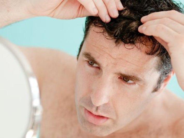 falhas no cabelo