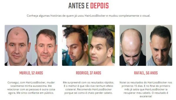 hair loss blocker antes depois
