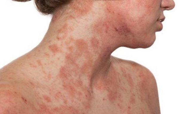 dermatite sintomas