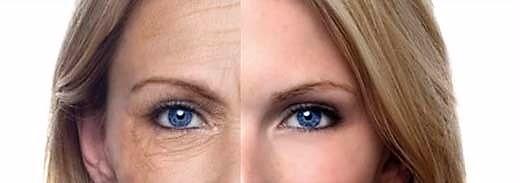 sinais da idade- cicatricure contorno dos olhos