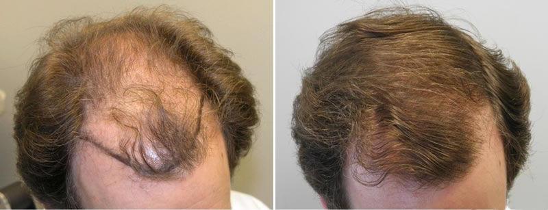 Imecap Hair Efeitos Pre 231 O Acabe Com A Queda De Cabelo